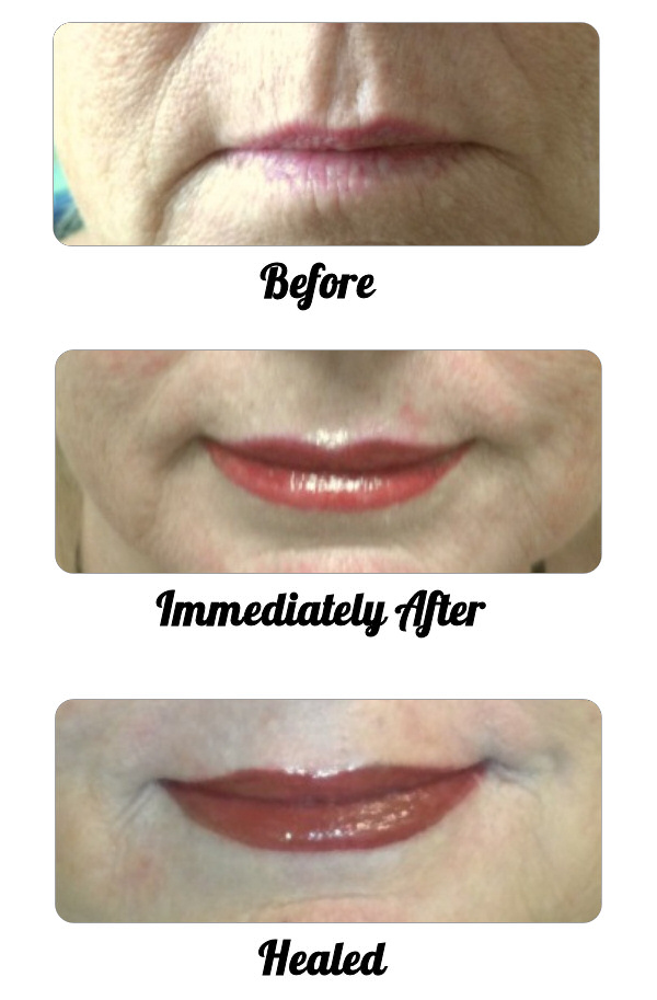 Completed Lip Treatment
