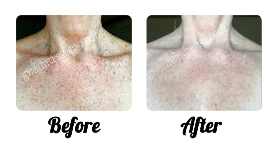 Micro-Needling Treatment: Marks and color variation greatly reduced after treatment and healing period