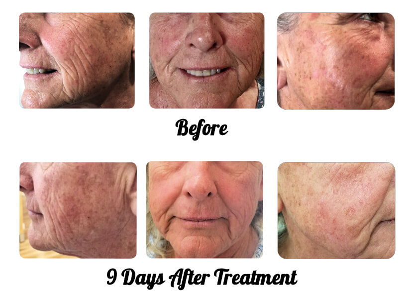 Micro Needling Treatment: Note the dramatic results after only one treatment