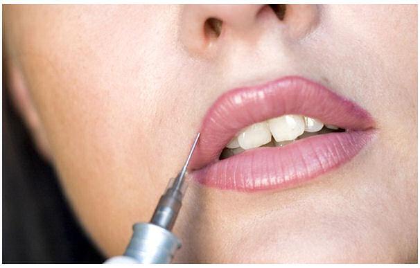Gwenn Traverso - Permanent Makeup - Lips