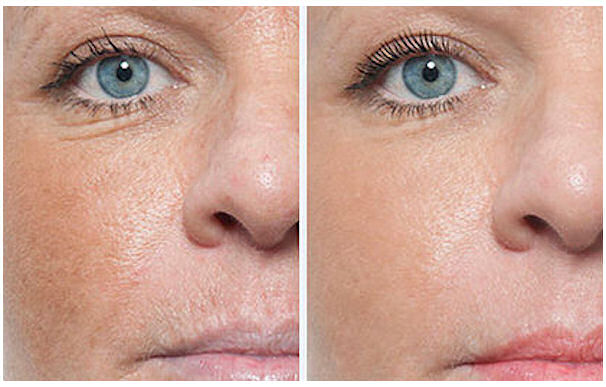Gwenn Traverso - Permanent Makeup - Micro Needling