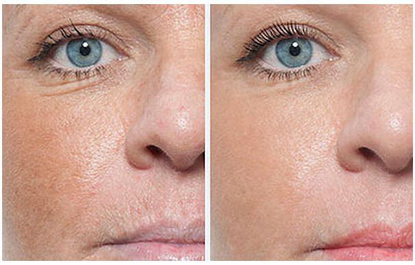 Gwenn Traverso - Permanent Makeup - Micro Needling