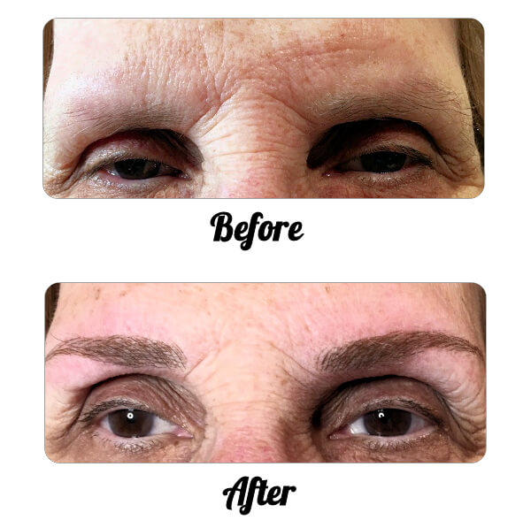Micro-Blading: The apperance of these eyebrows has been quickly improved using the Micro Blading technique