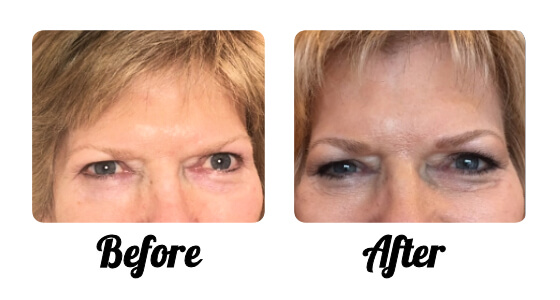 Micro-Blading-Eyebrows-Set-5